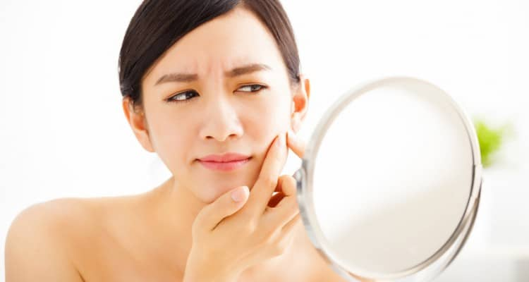Top 5 Ways To Prevent Acne